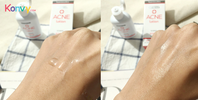 Dr.Somchai Acne Lotion_2